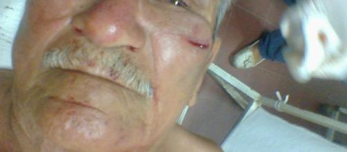 hombre de avanzada edad es agredido por jóvenes