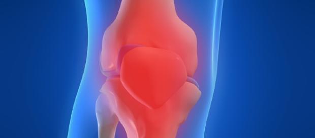 Gonartrosis (artrosis de la rodilla) - Netdoctor.es - netdoctor.es