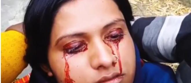 Jovem é abandonada pelo marido e chamada de bruxa porque chora sangue; vídeo