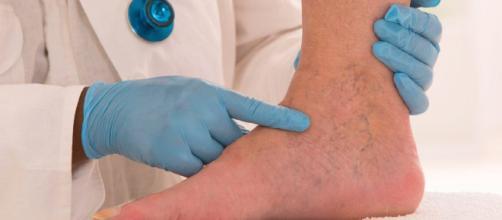 Eliminación de varices en las piernas