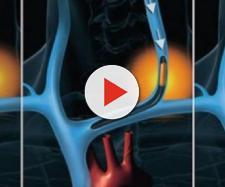 Sclerosi Multipla: identificato il meccanismo di riparazione della mielina