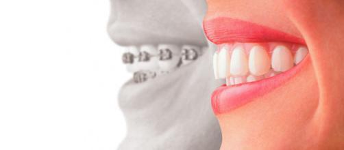 O que são dentes e quais são suas características fundamentais?