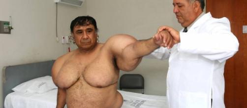 peruano que sufre una extraña enfermedad