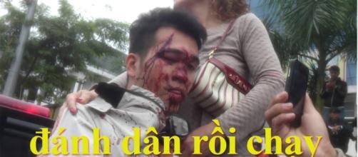 Photo publicado por Pham Van Truong, texto traducido; la policía pega al ciudadano y se da a la fuga