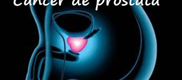 Cancer de Prostata como detectarlo y tratarlo - YouTube - youtube.com