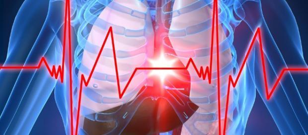 Cómo evitar un infarto de miocardio o un accidente vascular ... - diariote.mx