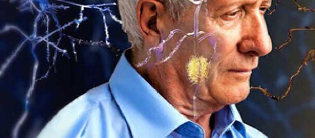 Fármaco frena muerte neuronal en Alzheimer - com.ar