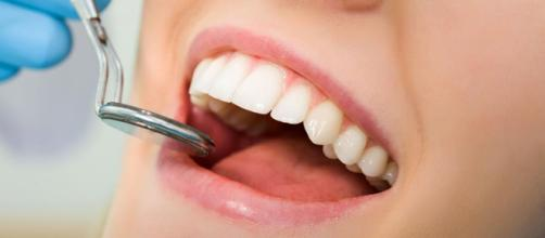 Salud oral: ¿limpieza dental o blanqueamiento? — Para Ser Bella - paraserbella.com