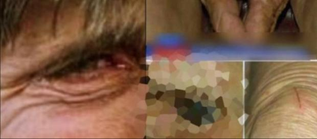 Mulher idosa sofreu horrores nas mãos do seu filho, de 54 anos