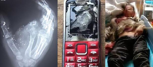 O dedo indicador direito de Meng Jisu foi arrancado na explosão de seu celular (Crédito: AsiaWire)