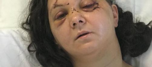 La donna vittima del brutale pestaggio dopo i primi interventi