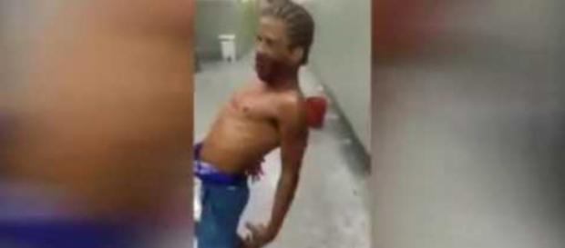 Imagens feitas em hospital brasileiro repercutiram em todo o território nacional. (Foto Reprodução).
