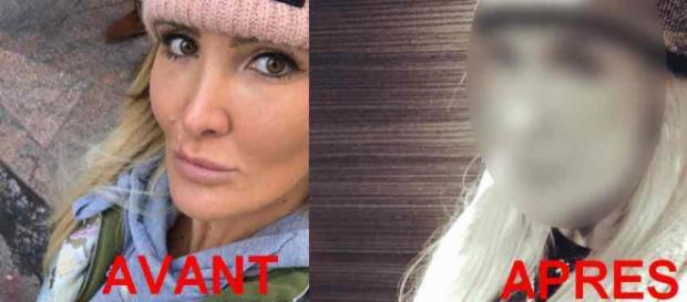 La chirurgie esthétique de trop pour Marie Garet ?