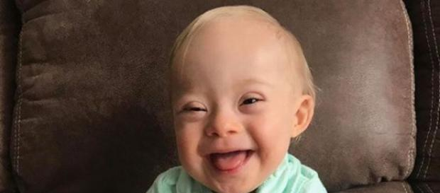 Por primera vez, bebé con Síndrome de Down será la imagen de ... - com.mx