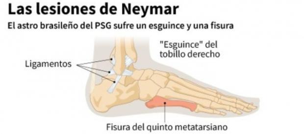 La lesión de Neymar, más grave de lo anunciado