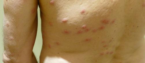 Bed bug bites (Image via Hermann Luyken/Wikimedia)
