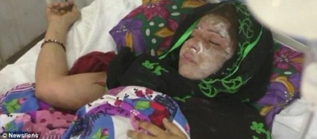 Un bărbat din India și-a ars soția cu acid pentru că i-a născut două fete iar el dorea un băiat - Foto: Daily Mail (© Newslions)