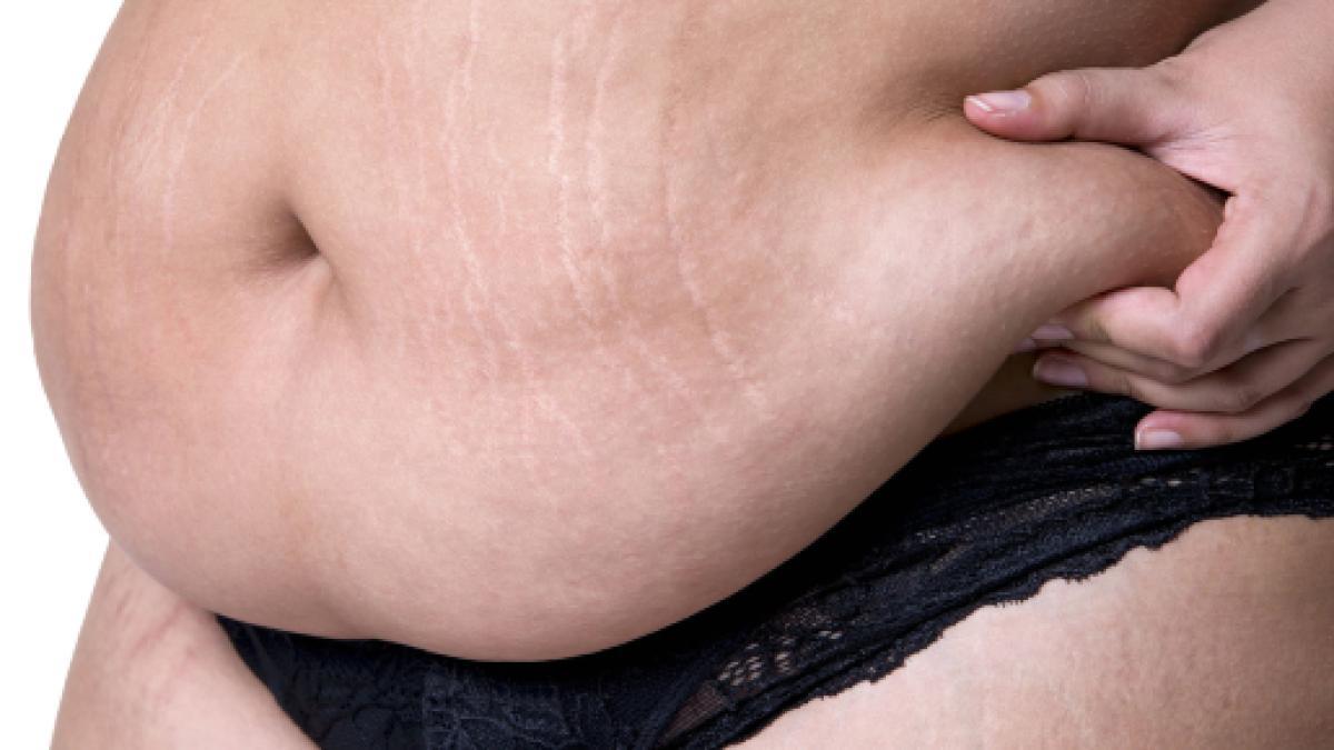 Diete Veloci 10 Kg In 2 Settimane : Dieta degli economisti e perdi kg in una settimana
