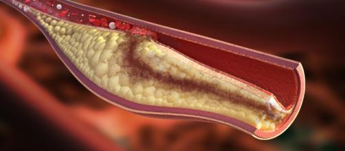 Colesterolo: l'acido bempedoico lo riduce
