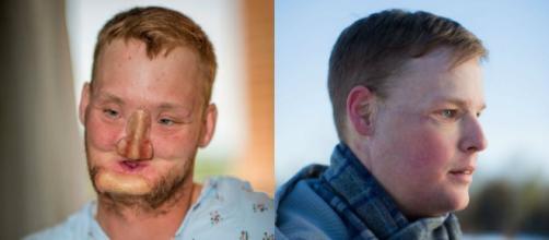 Le hicieron un trasplante de cara y quedó irreconocible | Salud ... - minutouno.com