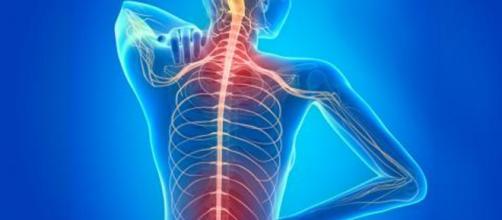 Todo sobre la esclerosis múltiple, la enfermedad degenerativa del ... - cronicanorte.es