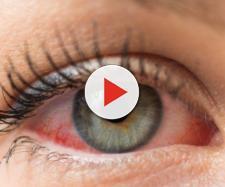 Glaucoma: sintomi e cure - areaoftalmologica.com
