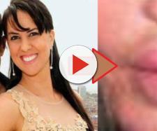 Graciele Lacerda colocou botox no rosto e surpreendeu seguidores; alguns não gostaram