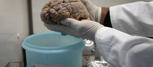 La cocaína provoca cambios en el cerebro que favorecen la adicción - cuatro.com