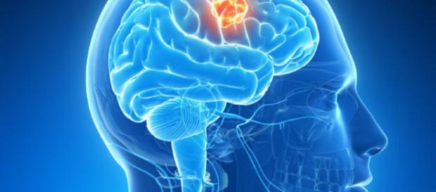 Mecanismo clave en formación de tumores cerebrales   Cáncer ... - com.uy
