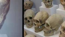 ¿Los cráneos alargados son alienígenas? La historia entre dudas e incertidumbres