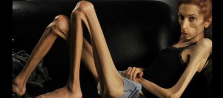 Mujeres con anorexia nerviosa son más propensas a cometer robos ... - com.mx