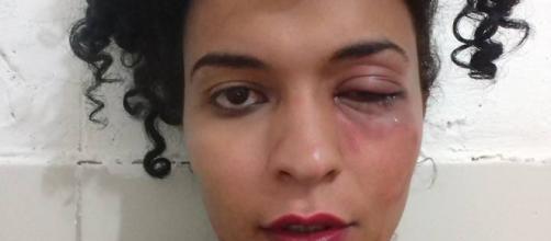 Dália Celeste, estudante trans, foi agredida dentro do campus da UFPE, em Recife.