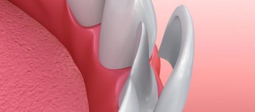 Zubident – Dentista en la Zubia - wordpress.com