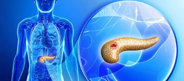 Exámenes de laboratorio para detectar cáncer - laboratoriomartinez.com