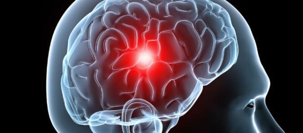 No, el cerebro no duele y te explicamos por qué - elespanol.com
