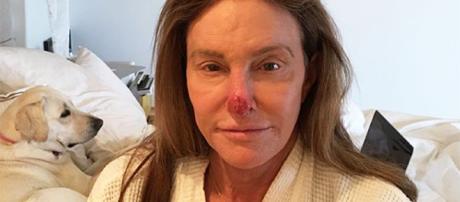 Caitlyn Jenner reveals skin cancer damage removal. - [Image Credit: Instagram]