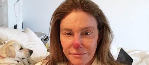 """Caitlyn Jenner comparte una foto que muestra el """"daño solar ... - celebridadesonline.com"""
