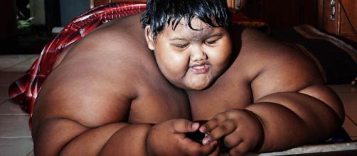 Los niños con obesidad se enfrentan a muchos otros retos fuera de la presión para adelgazar.