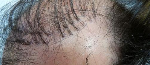 Tufos de cabelo são uma das maiores reclamações dos pacientes que caíram nas clínicas clandestinas
