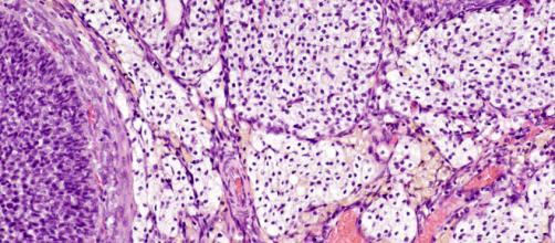 Foto del tessuto interstiziale