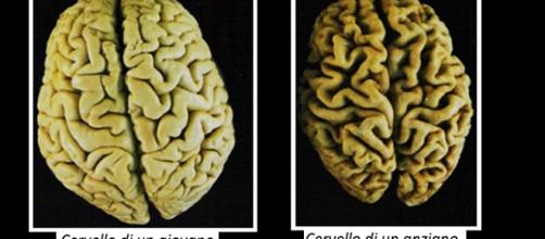 Solo il cervello umano (ipotalamo) riesce a rigenerarsi (neurogenesi) a qualsiasi età