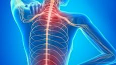 Sistema nervioso afectado por la esclerosis múltiple