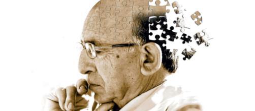 Investigadores de Alzheimer ganan premio intelectual.