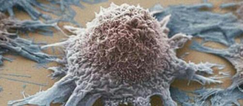 Nuove speranze per la cura dei tumori: annullata l'azione di una proteina che sviluppa le cellule tumorali (fonte infooggi.it )