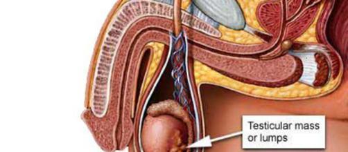 Tumore ai testicoli: allarme diagnosi troppo tardive