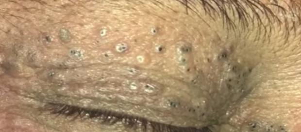 Vídeo mostra dermatologista removendo cravos