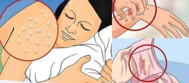 Sintomas que aparecem no corpo de uma pessoa infectada
