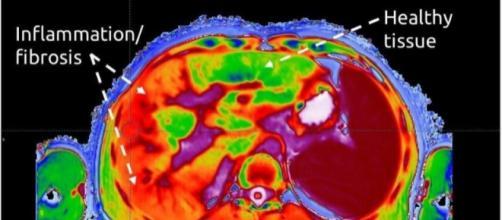 Imagen de LiverMultiScan con tejido sano y tejido inflamado