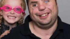 Veterano de guerra con rostro desfigurado retoma la confianza gracias a una niña