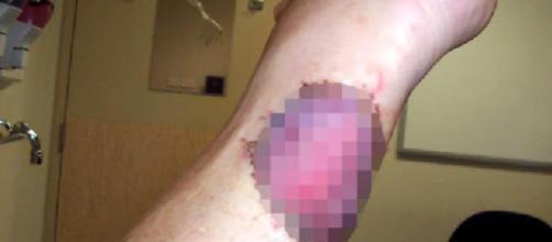 Ulcera carnivora: allarme epidemia in Australia per quella che normalmente è una malattia rara - foto:nuovarassegna.it